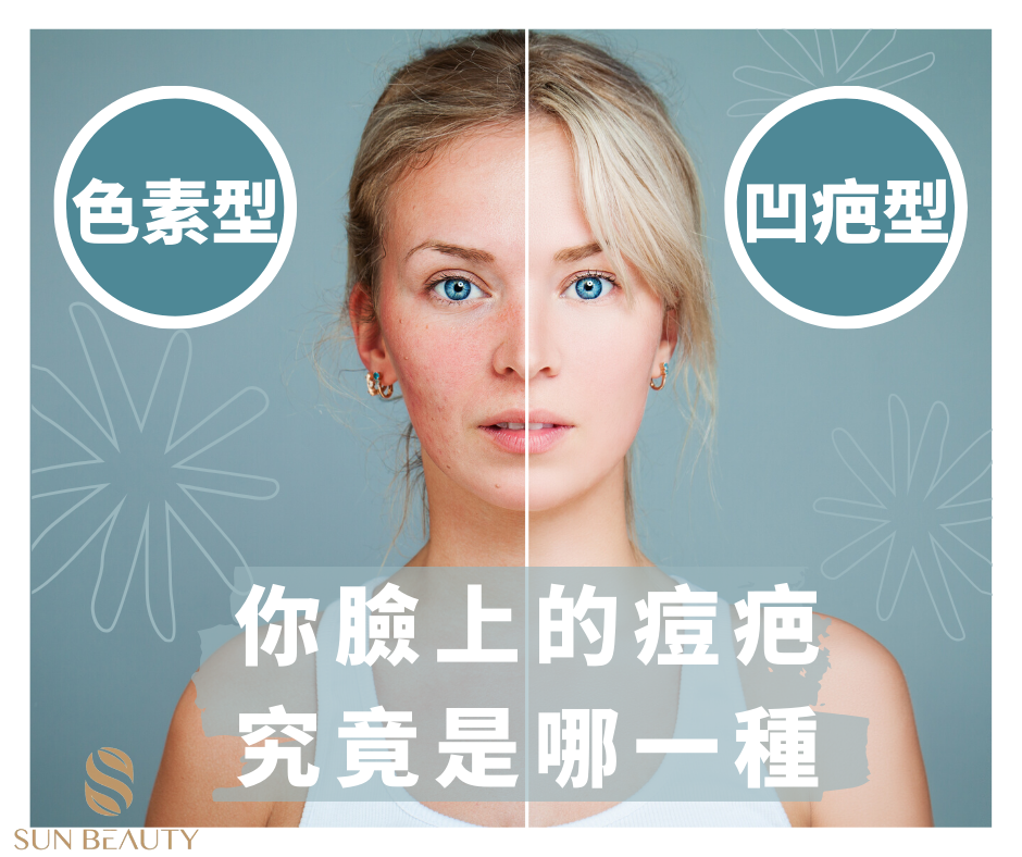 原來臉上的痘痘都有 分類型 看看你是哪種
